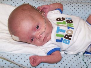 Hydrocephalus due to IVH
